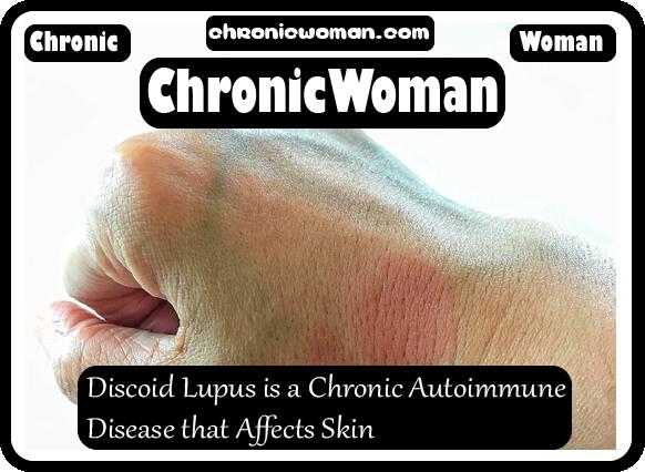Discoid Lupus is a Chronic Autoimmune Disease that Affects Skin