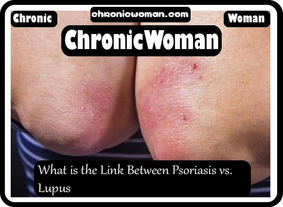 What is the Link Between Psoriasis vs. Lupus