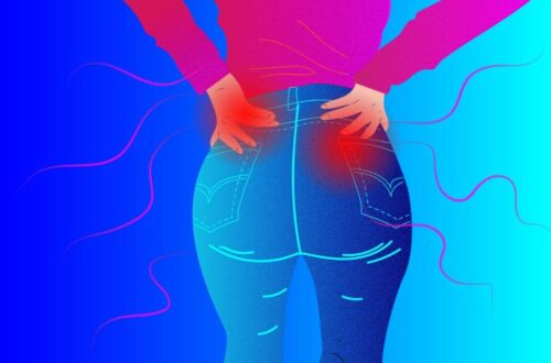 Butt Pain and Arthritis: Symptoms Causes and Treatments