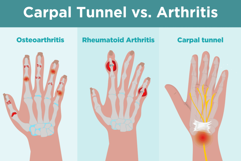 Carpal Tunnel Syndrome vs. Arthritis: What's the Difference?
