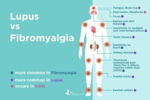 Fibromyalgia vs. Lupus: What's the Difference?