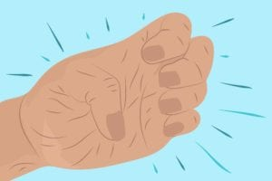 Trouble Making a Fist? It Could Mean You're Developing Rheumatoid Arthritis