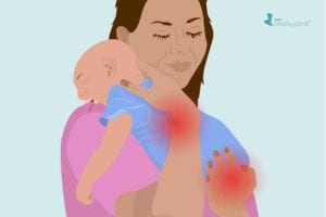 Good News for Pregnant Women with Arthritis: Most Babies Exposed to Biologics in Utero Don't Get Serious Infections
