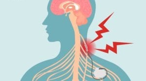 Vagus Nerve Stimulation: A New Way to Treat Rheumatoid Arthritis